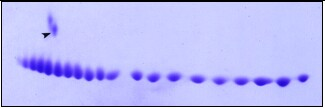 Coomassie-stain 2D gel pI marker carbamylated Carbonic Anhydrase. Isoforms differ by single charge