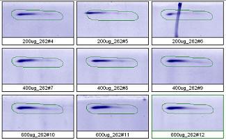 2D Gel Analysis: high molecular weight spot 300kD pl 5.7. Spot outlines of 9 gels 200-600 μg