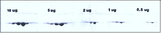 2D electrophoreis gel increasing loads 0.5- 10 micrograms of actin