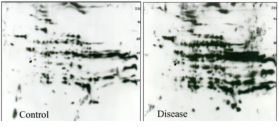 2D western blot anti-acetyl lysine ab: lysine acetylation increases in diseased vs. control liver