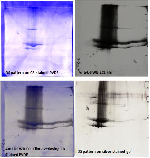 Anti-drug substance 2D western blot: stained PVDF, anti-DS 2D film, overlay image, 2D gel