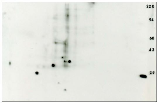 Phosphotyrosine 2D Western blot siRNA mouse embryonic fibroblast + control Carbonic Anhydrase 29kD
