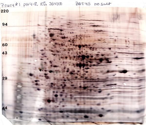 silver stain, 2D gel, 50 micrograms yeast, 4-8 ampholines, 10% acrylamide slab gel